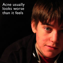 Acne spots - acne usually looks worse than it feels